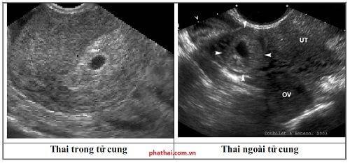 Thai ngoài tử cung siêu âm có thấy không?